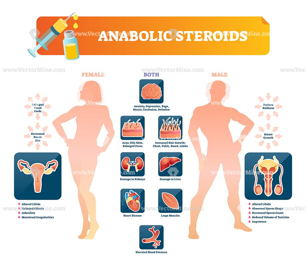 Anabolic steroids medical vector illustration infographic