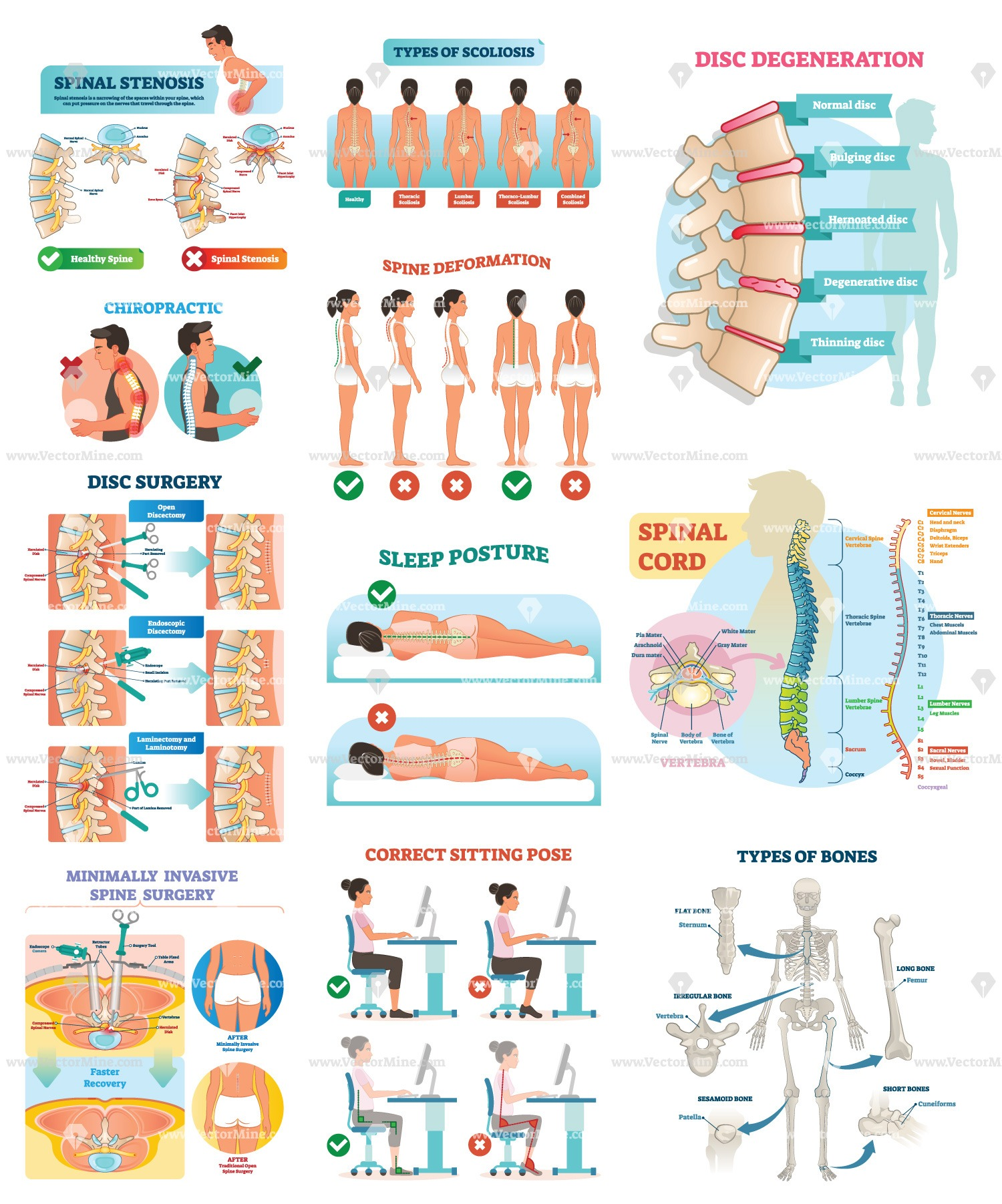 Spinal cord illustration bundle (27 vector illustrations)