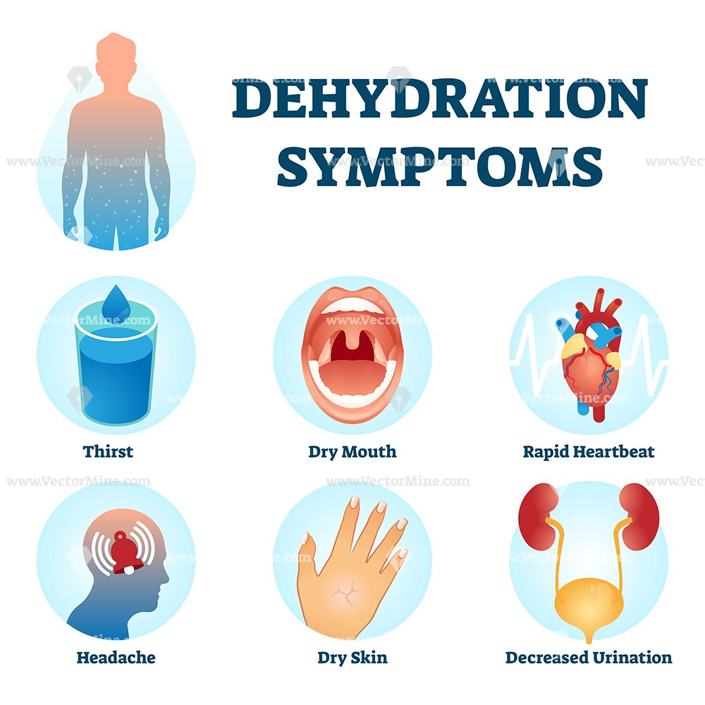 Free dehydration symptoms vector illustration