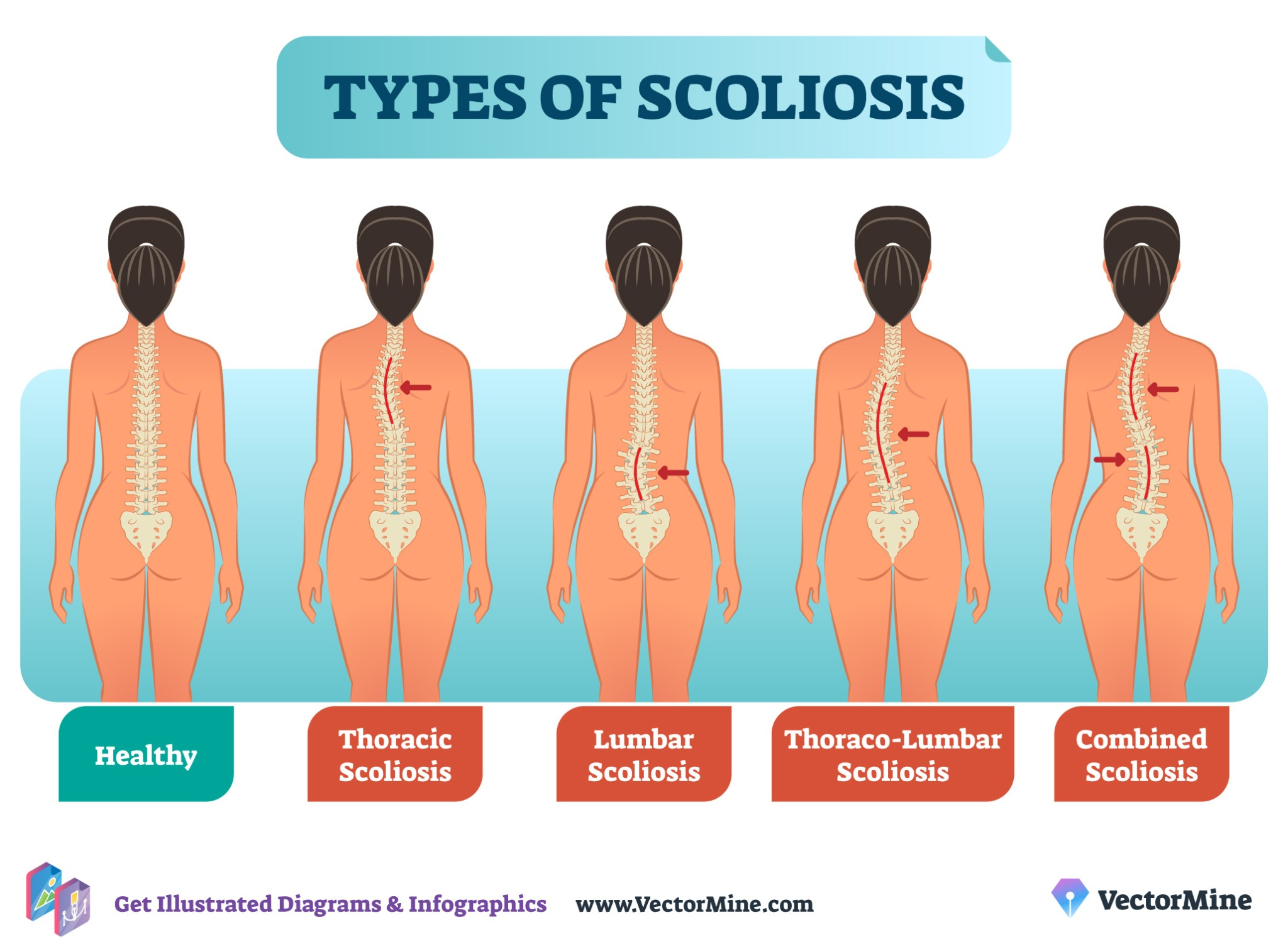 FREE types of scoliosis anatomical diagram (Branded)