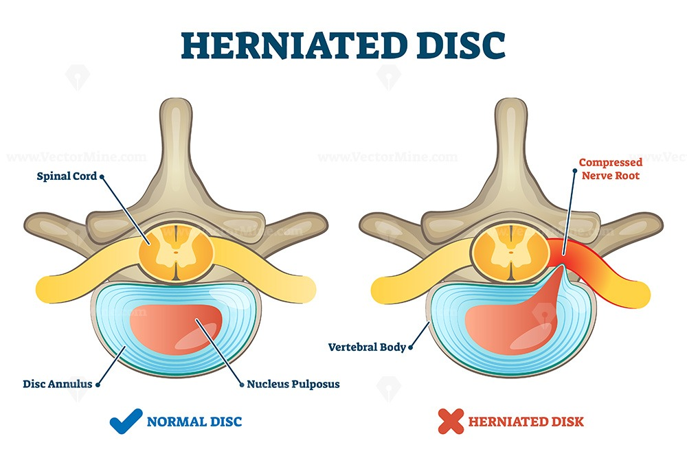 Herniated disc injury as labeled spinal pain explanation vector illustration