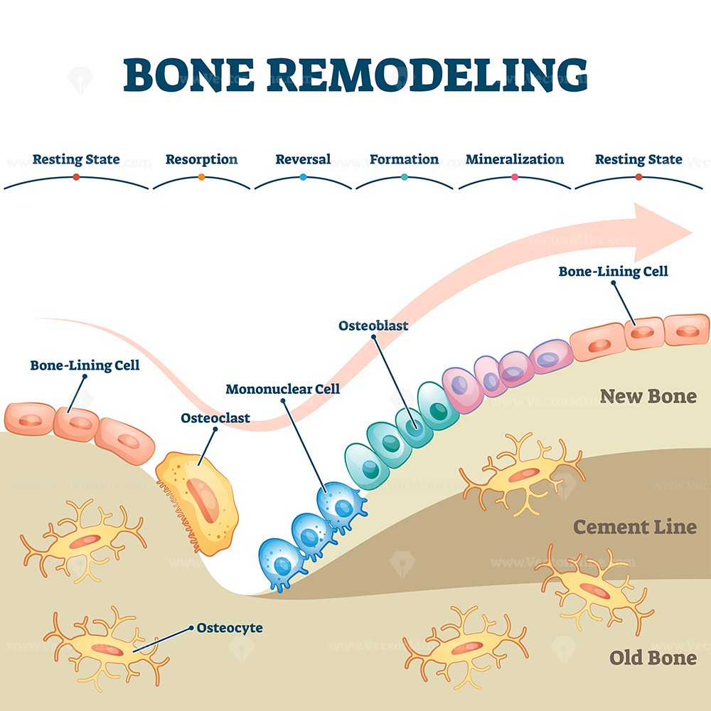 Bone remodeling process educational explanation with labeled structure scheme