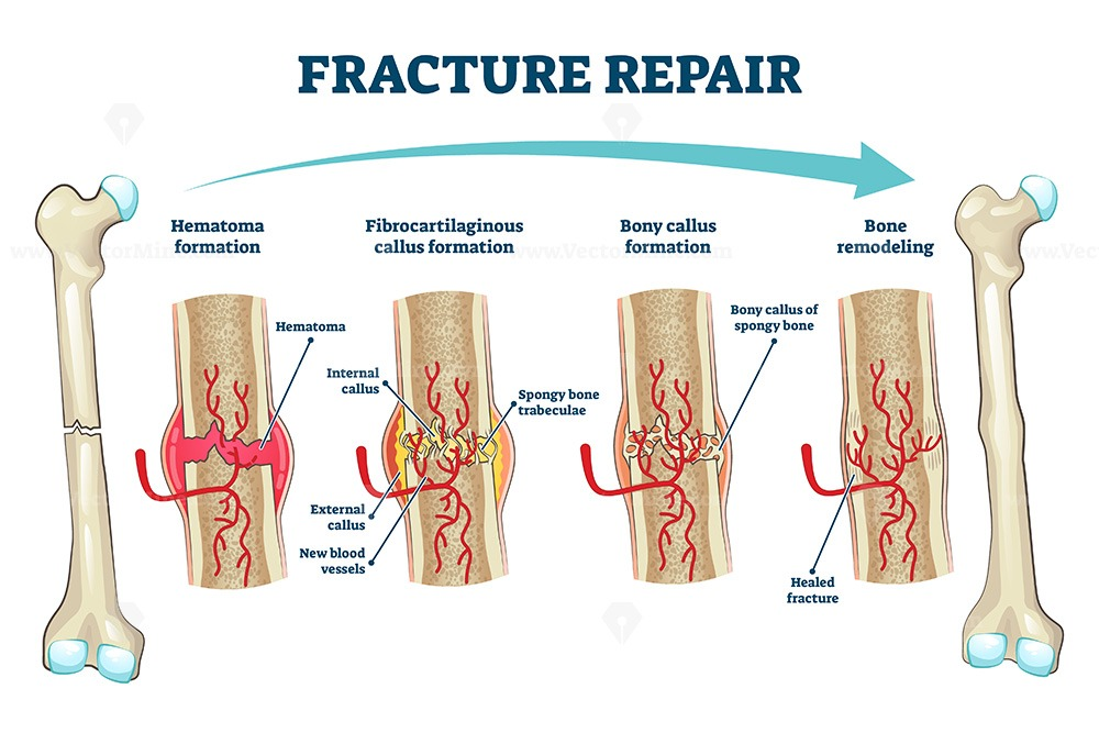 Fracture repair as educational bone remodeling formation vector illustration