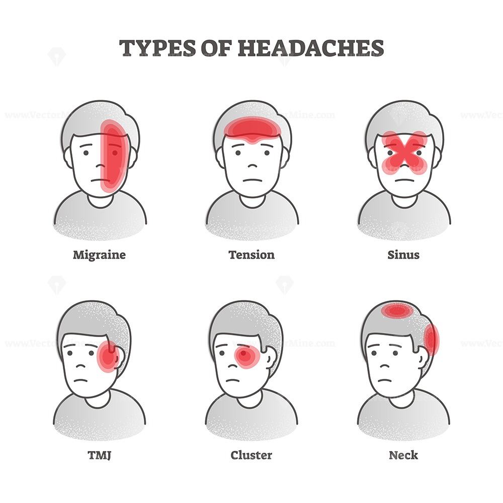 Types of headaches vector illustration