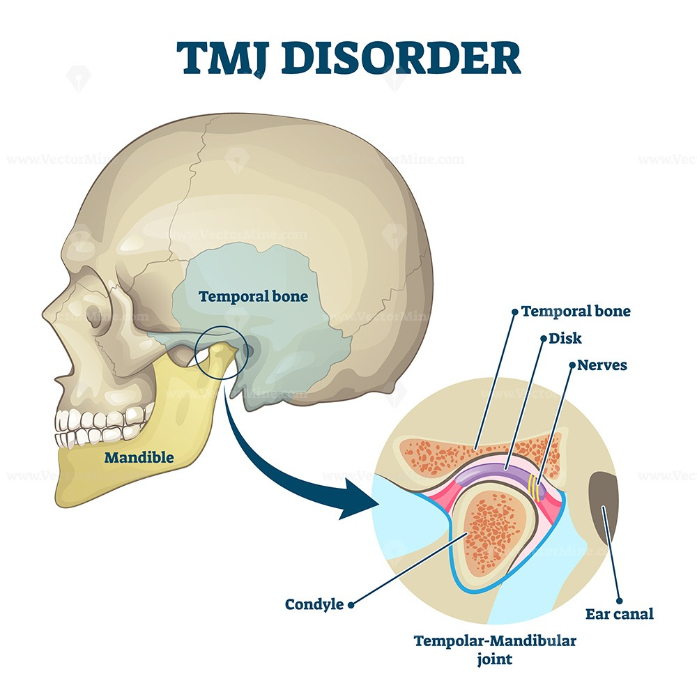 TMJ disorder vector illustration